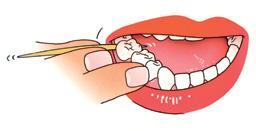 Instructie 6 Tandenstokers