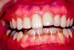 Verkleuring door stoornissen tandkiem