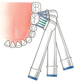 Hoe moet te poetsen met tandeborstel